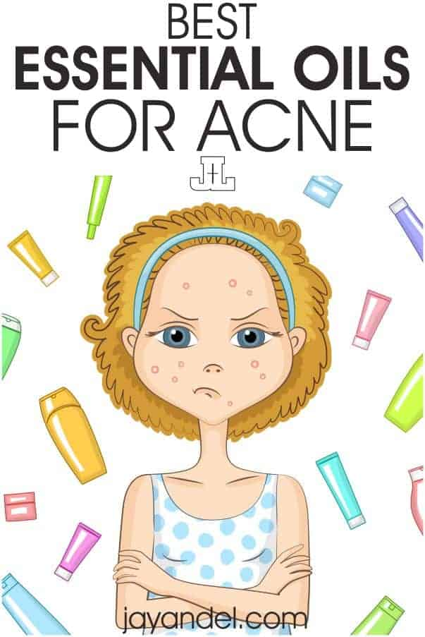 If you want to battle acne with essential oils, check out these top essential oils for acne.