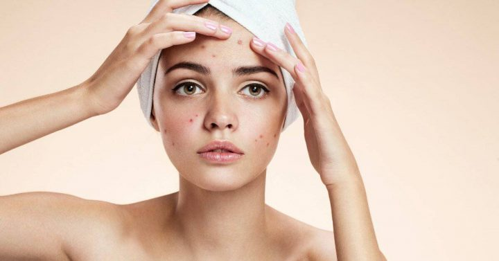 5 Natural Home Remedies To Get Rid Of Acne That Work